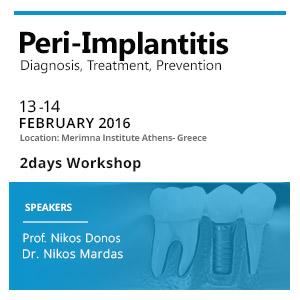 Peri-implantitis Workshop