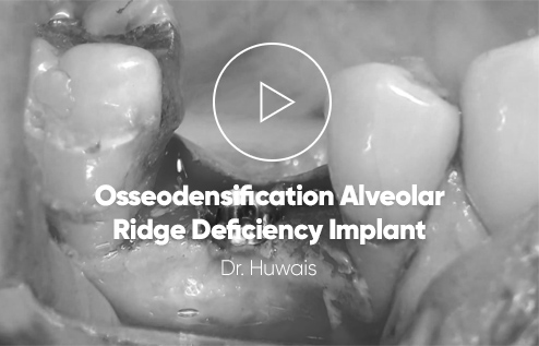 Osseodensification alveolar ridge deficiency implant