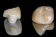 Έµµεσες αποκαταστάσεις ενδοδοντικά θεραπευµένων δοντιών