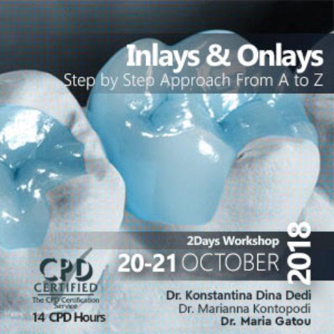 Inlays & Onlays