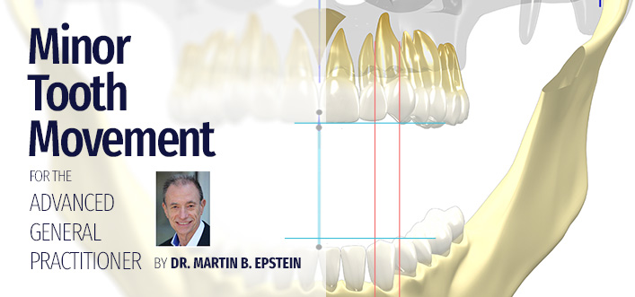 Minor Tooth Movement International Course 2018