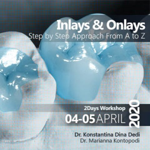 Inlays & Onlays – Step by Step Approach From A to Z