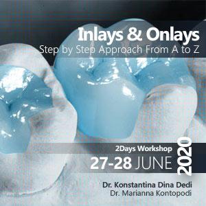 Inlays Onlays Dental Workshop Greece 2020