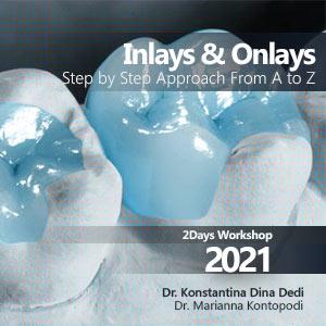 INLAYS ONLAYS Workshop 2021